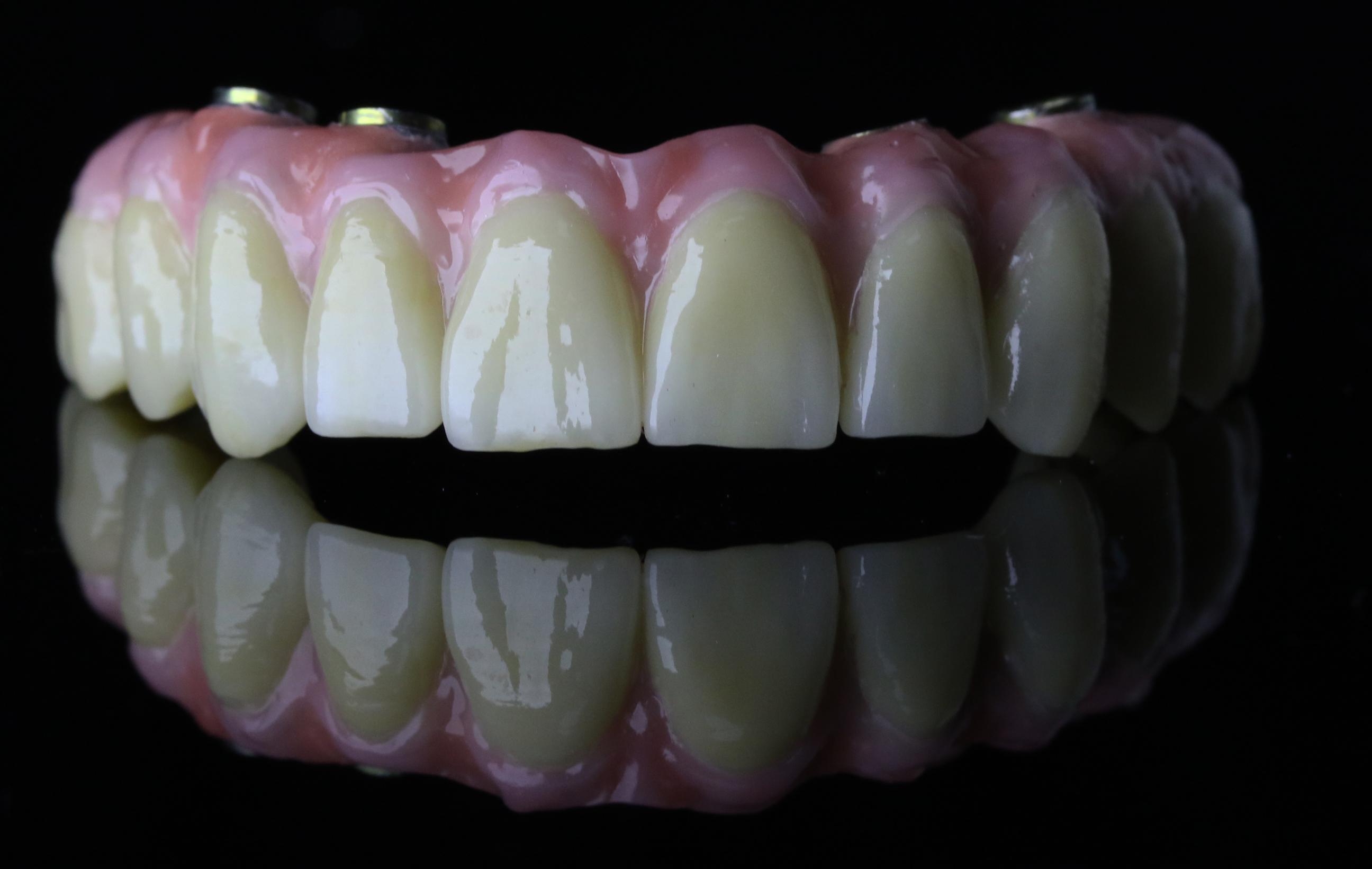 Simo's Dental Laboratory